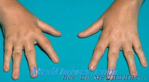 Причины артритов у детей. Особенности