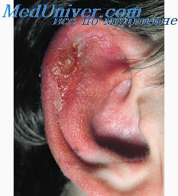 http://meduniver.com/Medical/profilaktika/Img/791.jpg