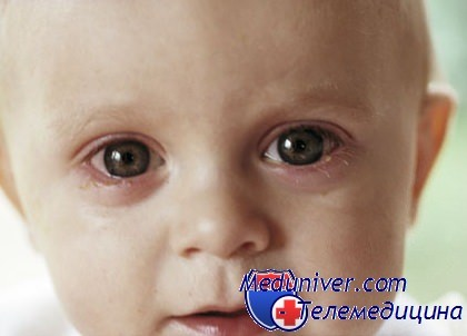 От чего у ребенка гноятся глаза? Как правильно лечить конъюнктивит ...
