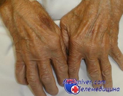 Не могут поставить диагноз ревматоидный артрит thumbnail