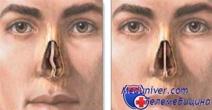 Искривления перегородки носа