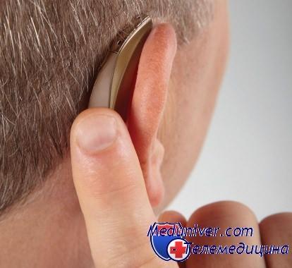 Традиционный слуховой аппарат