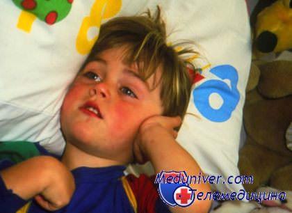 Причина боли в ухе у ребенка