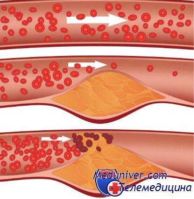 zasorenie krovenosnix sosudov 2 - Народные средства для чистки сосудов в организме человека