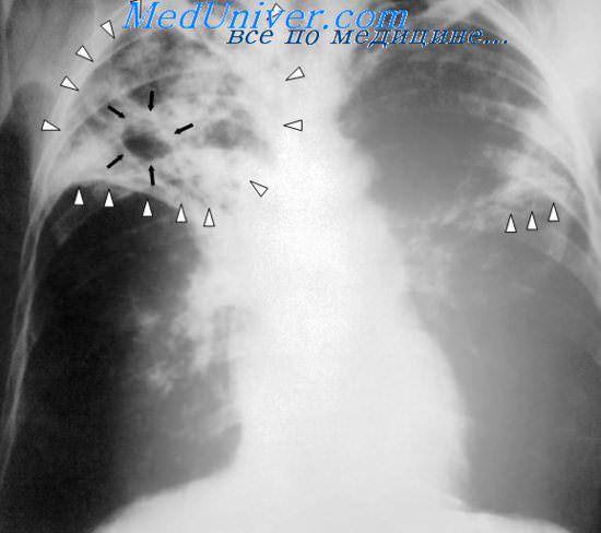 Рентгенограмма при туберкулезе
