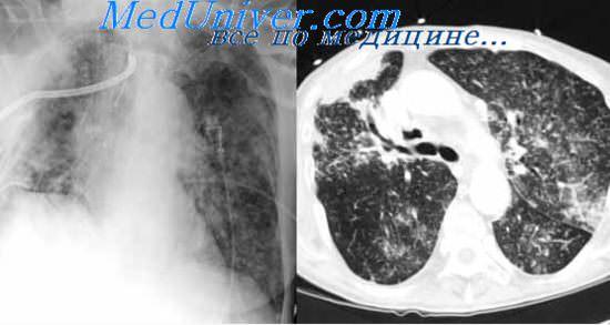 Лабораторная диагностика туберкулеза.  Выявление бактерий туберкулеза.