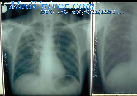 Артерио-венозная аневризма и туберкулома легкого. Лечение ...