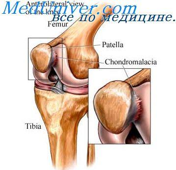 Западение сустава ног операции на суставах в германии