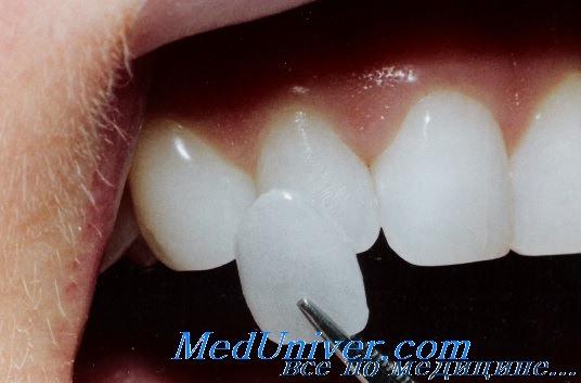 Виниры для восстановления эмали зубов