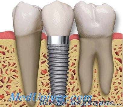 Элементы зуба при имплантации