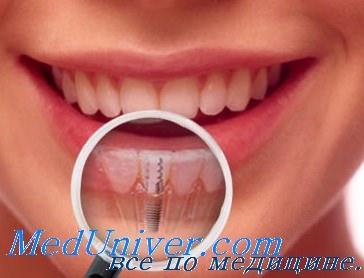 протезирование зубов имплантами