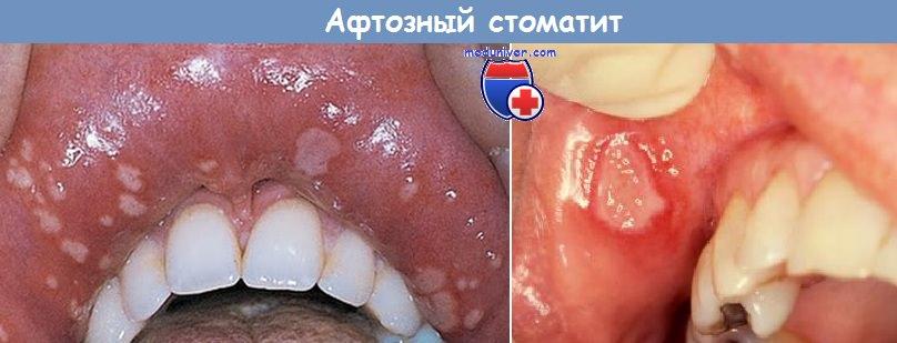 афтозный стоматит при болезни Крона
