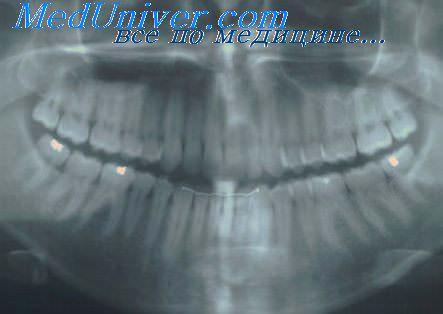 Рентгенограмма зубов