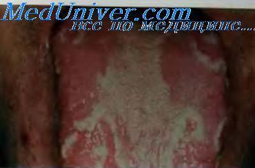 Язык с заедами анемия thumbnail