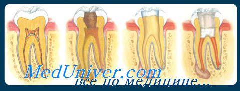 Расширение корня зуба