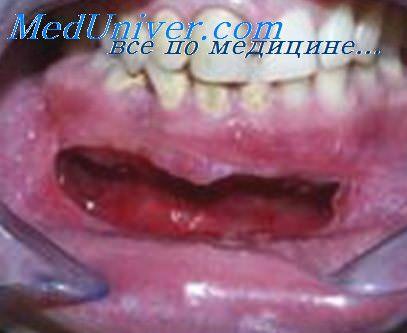 Киста зуба операция