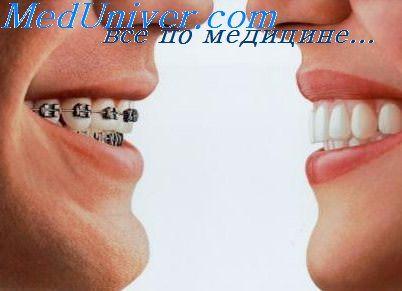 ортодонтическая аппаратура