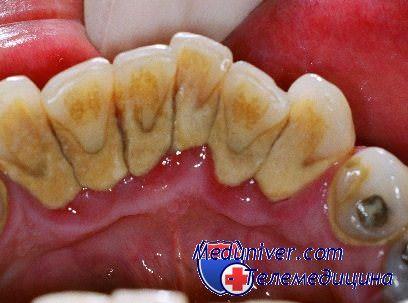 Пятна и желтый налет на зубах. Желтизна зубов