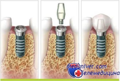 Осложнения имплантации зубов и цены на них