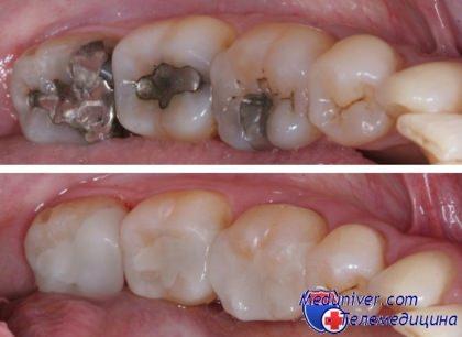 фото реставрация зубов