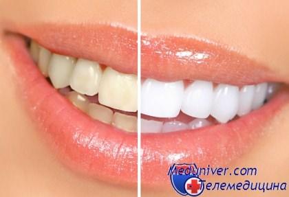 Профессиональная чистка зубов и их отбеливание