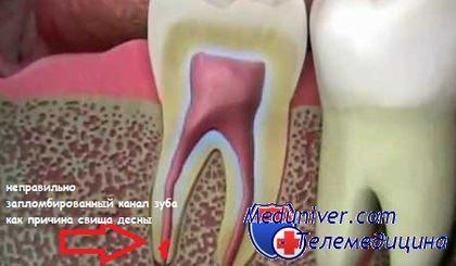 Свищ десны при инфекции зуба