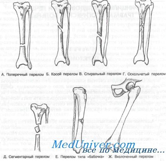 классификация переломов костей