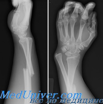Закрытый перелом диафиза лучевой кости thumbnail