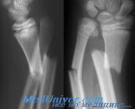 Сочетанные переломы лучевой и локтевой костей. Диагностика и лечение