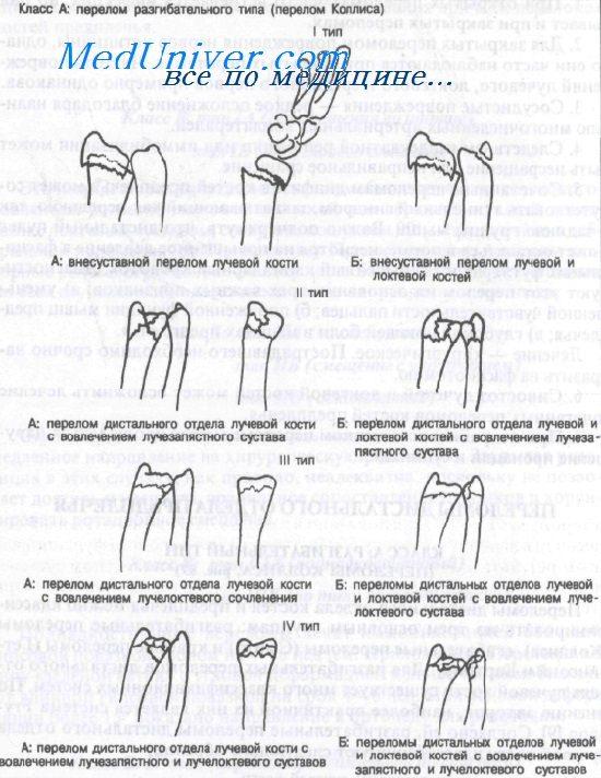 Переломы лучевой кости в типичном месте - клиника, диагностика