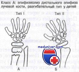 перелом лучевой кости у детей