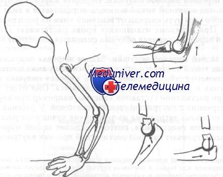 Переломы дистального отдела плечевой кости. Классификация ...