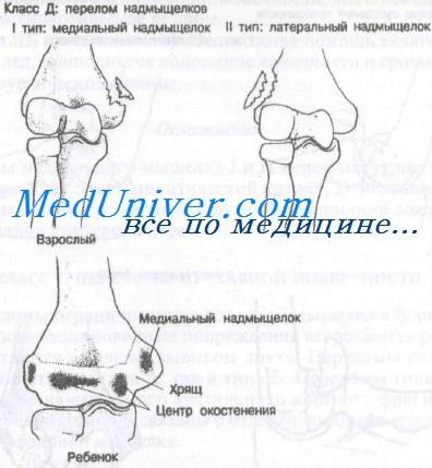 переломы надмыщелка плечевой кости