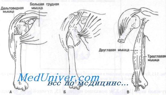 Перелом диафиза плечевой кости