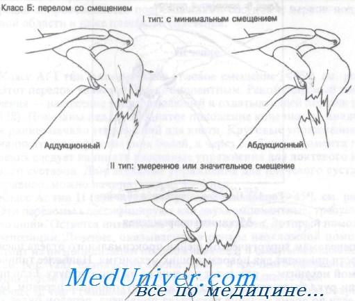 Перелом головки плечевой кости осложнения thumbnail