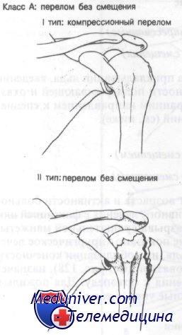 Перелом большого бугорка плечевой кости. Диагностика и лечение