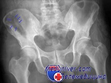 Перелом крыла подвздошной кости. Диагностика и лечение