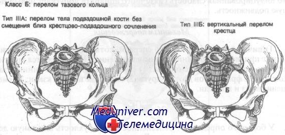 Перелом тела подвздошной кости без смещения. Диагностика и лечение