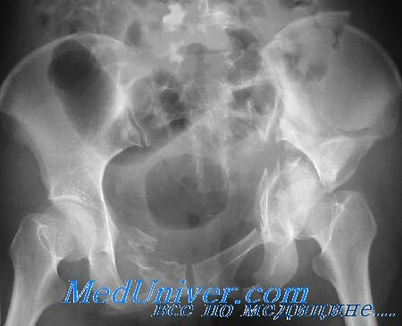вертлужная впадина тазовой кости перелом