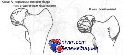 Перелом головки бедренной кости. Диагностика и лечение