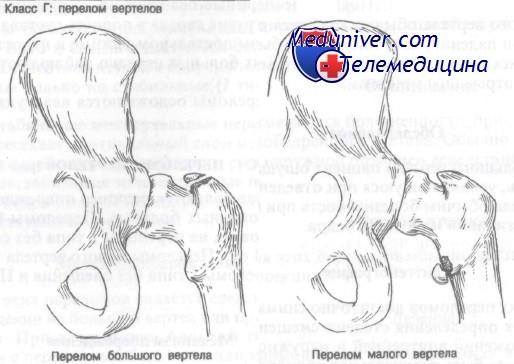 Перелом вертела бедренной кости