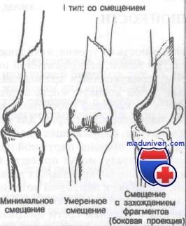 Переломы диафиза бедренной кости. Классификация, диагностика и лечение