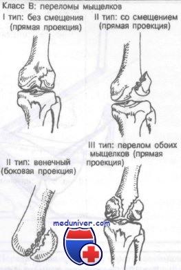 Переломы дистального отдела бедренной кости. Классификация ...