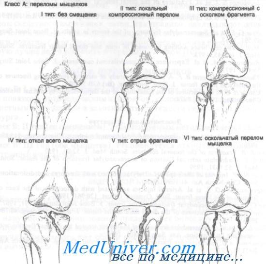 мыщелок коленного сустава перелом