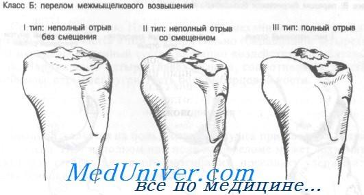перелом межмыщелкового возвышения большеберцовой кости