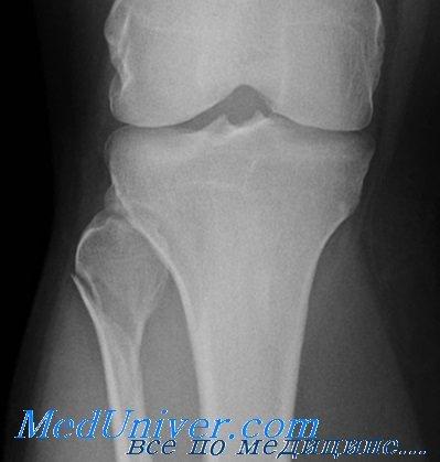 Проксимальный перелом малоберцовой кости