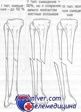Переломы большеберцовой и малоберцовой кости