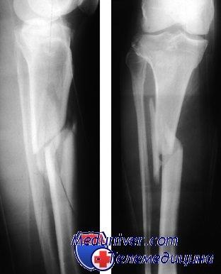 Переломы диафиза большеберцовой и малоберцовой костей. Диагностика ...