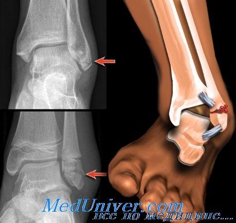 Переломы (травмы) голеностопного сустава. Классификация ...