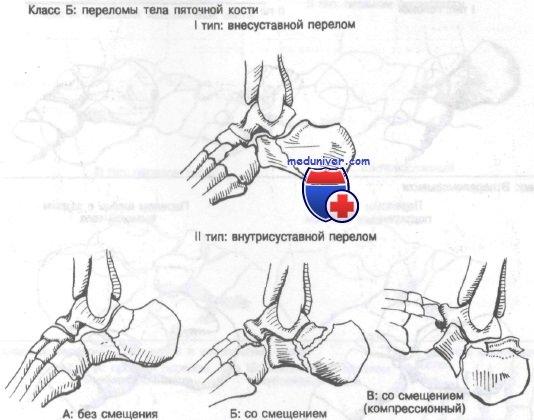 Типы (классификация) переломов пяточной кости